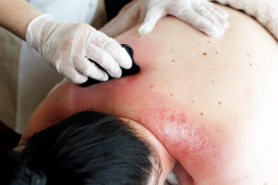 gua sha asian-owned beauty brands appropriation cultural