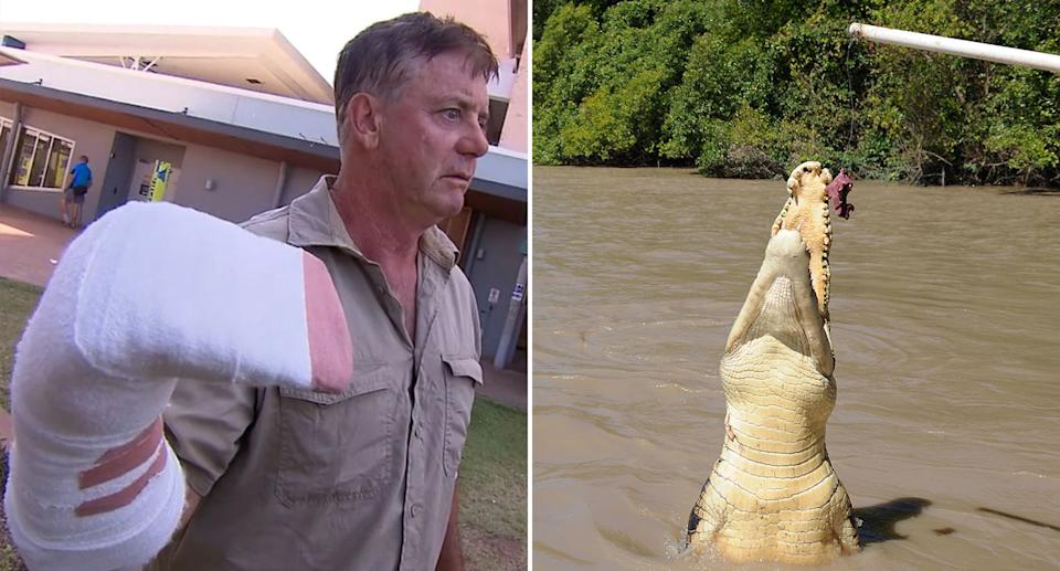 Shane Dearly was attacked by a crocodile while on a boat in the Northern Territory. Source: Nine News/AAP