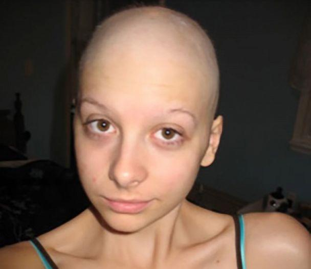 PHOTO: Caitlin Nespoli with a shaved head after chemotherapy at her home in Massapequa, N.Y., on September 9, 2008. (Courtesy of Caitlin Nespoli)