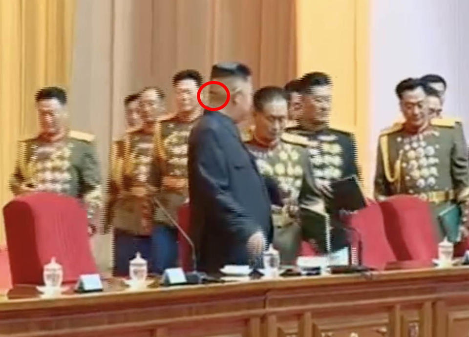 A mysterious head wound fuelled further speculation about Kim Jong-un's health. Source: KCTC