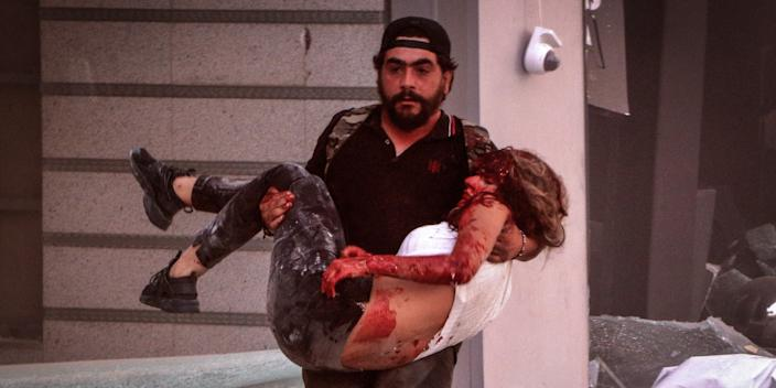 A man carries away an injured person following a massive explosion in Beirut's port on August 4, 2020.