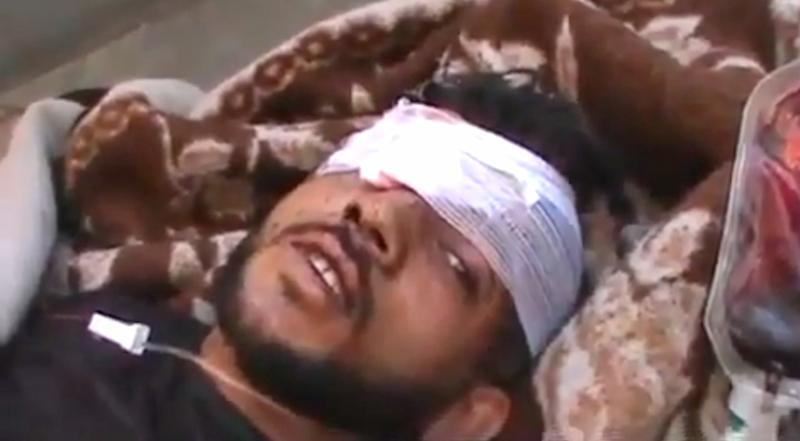 This citizen journalism image made from video provided by Shaam News Network SNN, purports to show a victim wounded by violence that, according to anti-regime activists, was carried out by government forces in Tremseh, Syria about 15 kilometers (nine miles) northwest of the central city of Hama, Thursday, July 12, 2012. The accounts, some of which claim more than 200 people were killed in the violence Thursday, could not be independently confirmed, but would mark the latest in a string of brutal offensives by Syrian forces attempting to crush the rebellion. (AP Photo/Shaam News Network, SNN) THE ASSOCIATED PRESS IS UNABLE TO INDEPENDENTLY VERIFY THE AUTHENTICITY, CONTENT, LOCATION OR DATE OF THIS IMAGE
