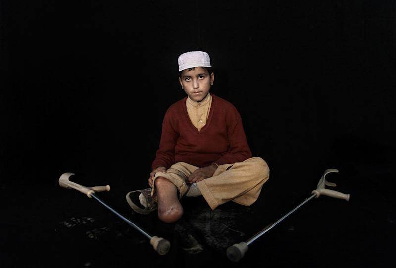 In this Thursday, Feb. 21, 2012, photo, Pakistani student Hazratullah Khan, 14, who was injured in a car bombing on December 17, 2012 in Peshawar, poses for a picture in Peshawar, Pakistan. Hazratullah Khan's right leg was amputated below the knee after he survived a car bombing as he was on his way home from school. His response when asked whether peace talks should be held with the Taliban leaders who ordered attacks like the ones that maimed him is simple: Hang them alive. Slice their flesh off their bodies and cut them into pieces. (AP Photo/Muhammed Muheisen)