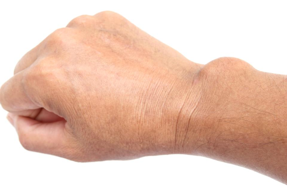 Close-up cyst on the hand