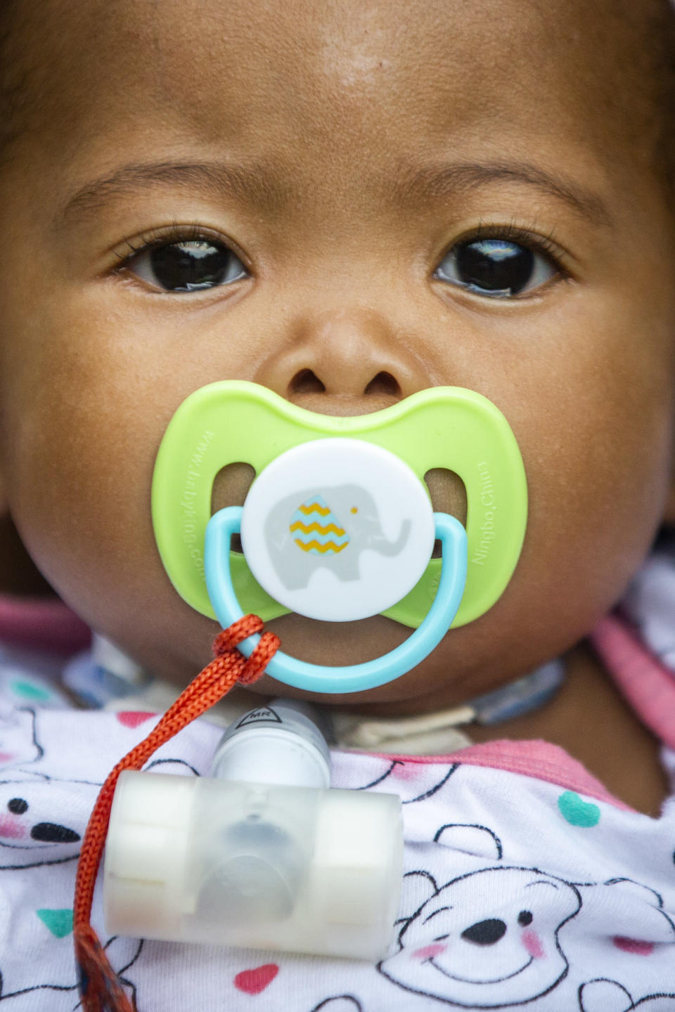 Jalayah Johnson, who lost her hospital job during the pandemic, wears a tracheal tube as she sucks on a pacifier as her mother, Tyesha Young, holds her in Waggaman, La., Friday, July 2, 2021. More than $7,000 behind on rent, Young had hoped a program in Louisiana would bail her out and allow her family to avert eviction in the coming weeks. But the 29-year-old mother of two from Jefferson Parish is still waiting to hear whether any of the $308 million available from the state for rental assistance and utility payments will give her a lifeline. She applied for money last year but never heard anything. (AP Photo/Sophia Germer)