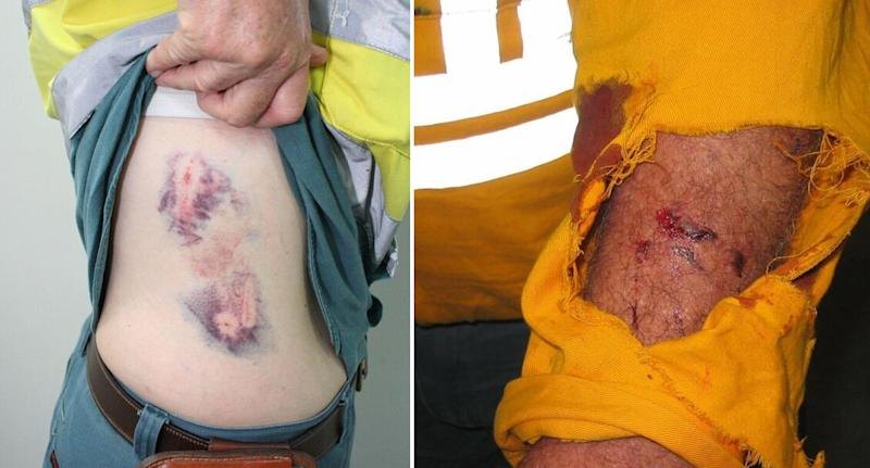 Workers have suffered dog bite injuries (pictured) while checking Queensland properties.