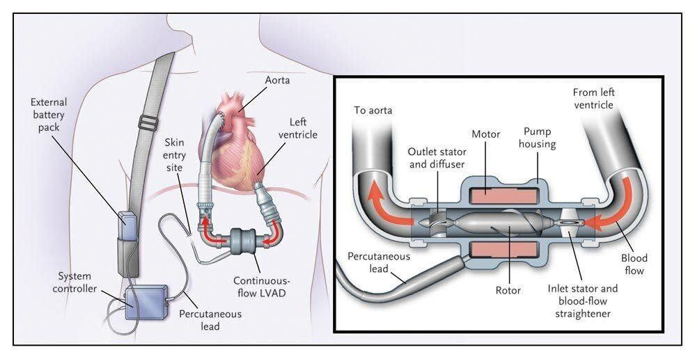 This diagram shows a left-ventricular assist device similar to those the Roman brothers use. (Photo: <span>Stanford Health Care</span>)