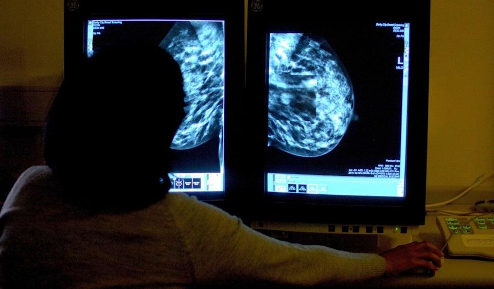 Charity Breast Cancer Now has launched a petition (PA) (PA Archive)