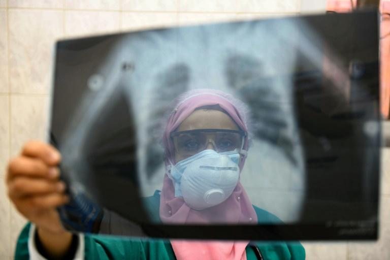 In this file photo from April 19, an Egyptian doctor checks a patient's lung X-ray at the infectious diseases unit of the Imbaba hospital in the capital Cairo (AFP Photo/Ahmed HASAN)