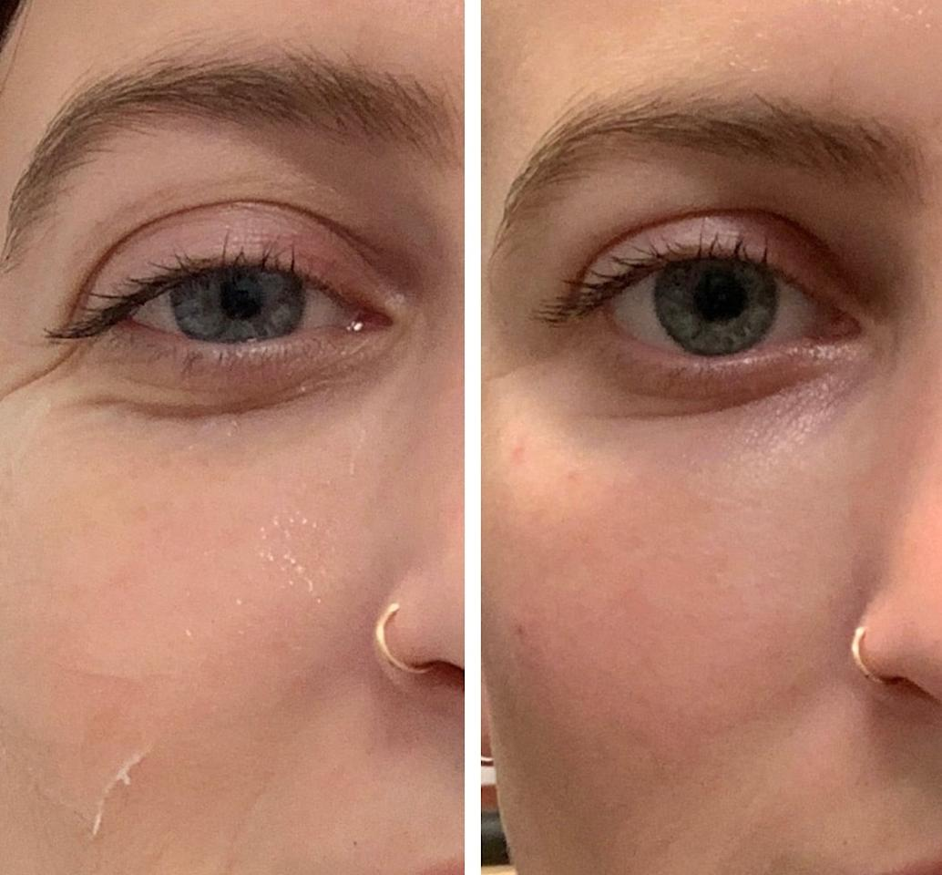"""<p>When I sent through the """"after"""" picture to my group text immediately after Dr. Marmur was finished, there was a collective """"OMG!!!"""" reaction - so much so that one of my friends had made this side-by-side photo within minutes. Not only were the deep-set wrinkles gone, but my eyes looked more open, less puffy overall, and fully refreshed. I was sort of shocked at how much improvement I saw within minutes of getting the fillers.</p>"""