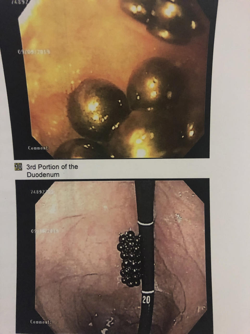 For one scary moment, doctors couldn't see the magnets in Peyton's stomach and thought they had slipped back into his small intestine. They pulled the camera back and realized they were stuck to the scope but still in the stomach. (Courtesy Jessica MacNair)