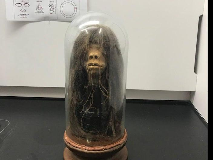 A movie prop used in a 1979 film has been proven to be a real human head after tests done at Mercer University in Georgia.  (Adam Kiefer/Mercer University)