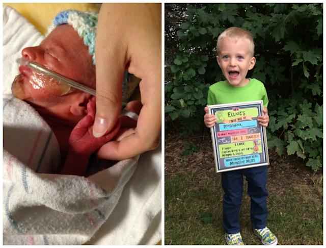 Elliot Tighe at one day old, born eight weeks early (left), and recently, 3 years old, on his first day of preschool (right).<br><br><i>--Gabriele Ogoley</i>