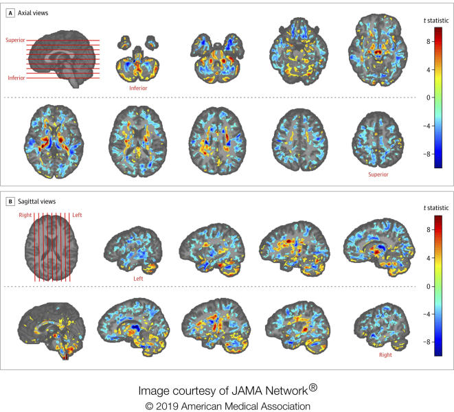 This image provided by the American Medical Association in July 2019 shows the amount of differences between brain scans of patients, U.S. diplomats who developed concussion-like symptoms after working in Cuba, and a control group. Between late 2016 and May 2018, several U.S. and Canadian diplomats in Havana complained of health problems from an unknown cause. One U.S. government count put the number of American personnel affected at 26. (American Medical Association via AP)