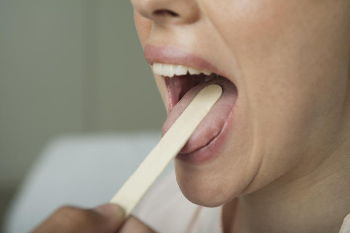 """Anecdotal reports of a symptom called """"COVID tongue"""" have been cropping up in Facebook groups, but experts tell Yahoo Life the reaction could be unrelated. (Photo: Getty Images)"""