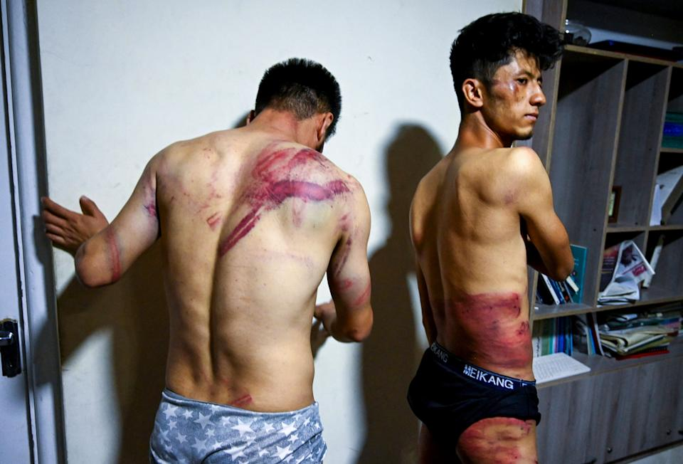 Afghan newspaper Etilaat Roz journalists Nematullah  Naqdi and Taqi Daryabi show their wounds in their office in Kabul after being released from Taliban custody. Source: AFP