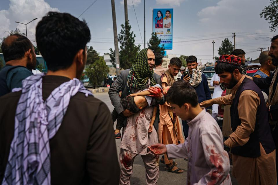 A man cradles an injured child after the Taliban use force to control crowds in Kabul. Source: Getty