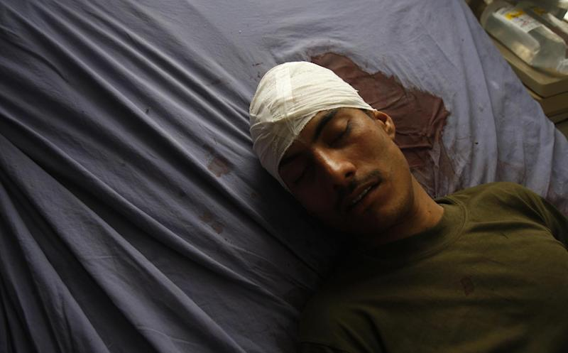 Pakistani tribal policeman Amanullah Khan, receives treatment at a local hospital in Peshawar, Pakistan, Sunday, Dec. 30, 2012. Twenty-one tribal policemen who were shot dead were found by officials shortly after midnight Sunday in the Jabai area of Frontier Region Peshawar after being notified by one policeman who escaped, said Naveed Akbar Khan, a top political official in the area. Another policeman was found seriously wounded, said Khan. (AP Photo/Mohammad Sajjad)