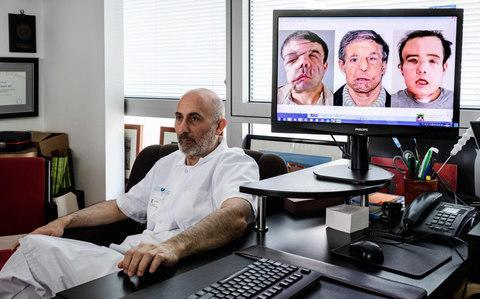 <span>French medicine professor Laurent Lantie next to portrait shots of his patient, Jerome Hamon, showing the steps of the surgery </span> <span>Credit: Philippe Lopez/AFP </span>