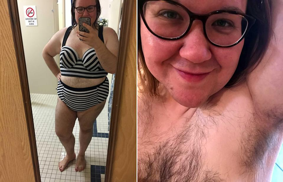 A women with PCOS has ditched the razor and found her body confidence (Photo: SWNS)