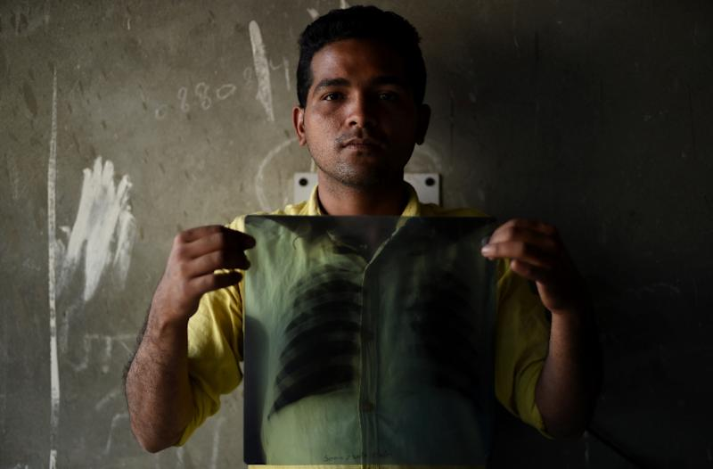 Indian tuberculosis (TB) patient Sonu Verma, 25, holds up his chest x-ray in Sonipat (AFP Photo/Money Sharma)