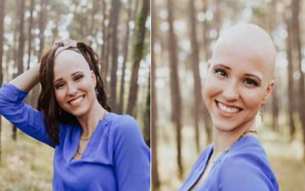 Makenzee Meaux was diagnosed with Alopecia Universalis aged 8 - The Frost Collective / Makenzee Meaux