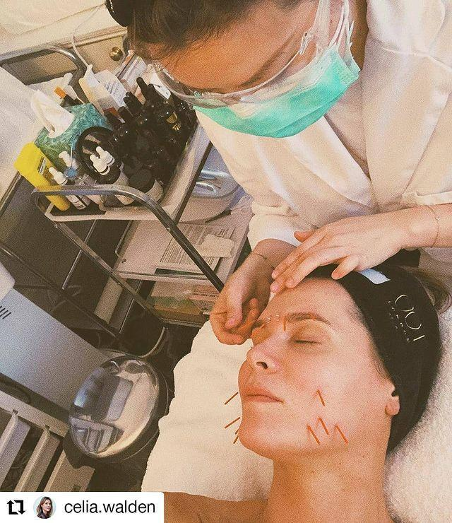 """<p>Expertly fusing eastern and western techniques, Ada Ooi combines aesthetic therapy and acupuncture into her bespoke facial treatments that are the ultimate in holistic healing. A 'facialist-acupuncturist' to many in the public eye, including royals, she tailors her treatments according to skin ageing, plus hormonal, stress and sleep issues.</p><p>It will start with a Traditional Chinese Medicine (TCM) Symptom Diagnosis, where your tongue, pulse, temperature and limbs are examined while your lifestyle and emotional factors are explored. Next, you might expect facial acupuncture, followed by lymphatic drainage and modern gua sha massage, manipulation of the facial fascia and sacral cranial fluid release. </p><p>The therapies (even the needles) feel impossibly relaxing, while the immediate improvements in your skin are there to see: sagging is lifted, contours are redefined and your brightened complexion glows from within.</p><p>Ada Ooi at Harley Street, £250 for 60 minutes (executive aesthetician, £150), visit <a href=""""https://www.001skincare.com/pages/bespoke-acupuncture-facials"""" rel=""""nofollow noopener"""" target=""""_blank"""" data-ylk=""""slk:001skincare.com"""" class=""""link rapid-noclick-resp"""">001skincare.com</a></p><p><a href=""""https://www.instagram.com/p/CEMJJjshdYm/?utm_source=ig_embed&utm_campaign=loading"""" rel=""""nofollow noopener"""" target=""""_blank"""" data-ylk=""""slk:See the original post on Instagram"""" class=""""link rapid-noclick-resp"""">See the original post on Instagram</a></p>"""