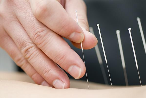 Acupuncture could help treat migraines, according to new research.
