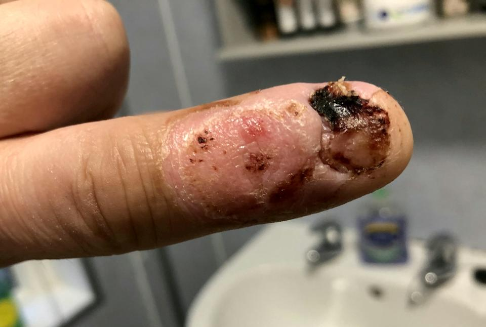 Doctors aren't sure if Steven's nail will grow back [Photo: SWNS]
