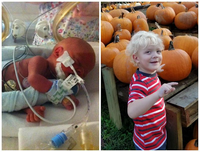 My son, Blake, was born on Oct. 18, 2014. He was born nine weeks early. He weighed 3 pounds, 1 ounce, and was 14.5 inches long. I had Blake via emergency C-section due to preeclampsia. He spent seven weeks in the NICU at Sacred Heart in Pensacola, Florida. The nurses there were incredible. Blake is now 3 years old and is doing great.<br /><br /><i>-- Lauren Jackson</i>