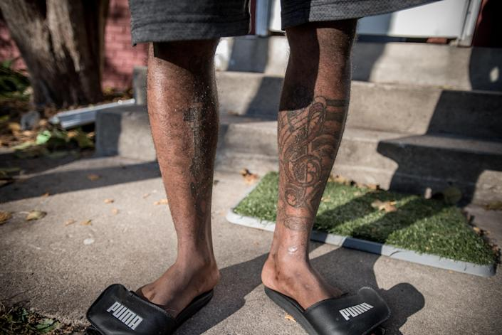Nfor displays the tattoos on his legs, which reflect his love of music. He is currently seeking a work permit and hopes to go to school to become an information technologist or electrician. (Photo: Caroline Yang for Yahoo News)