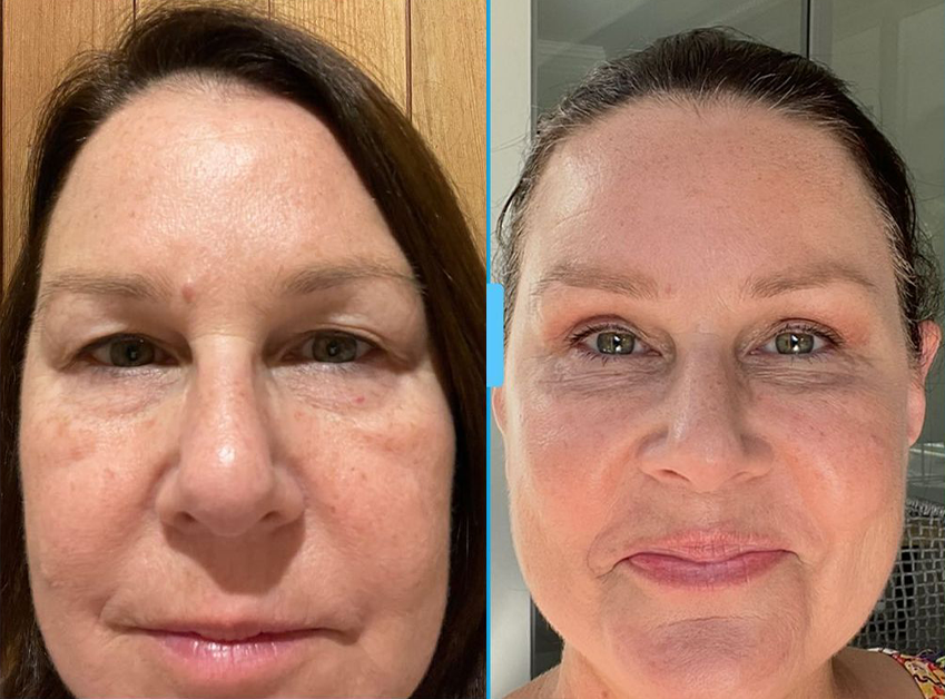 Before and after Julia Morris' procedure.
