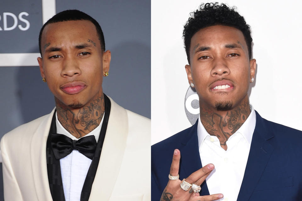 A before-and-after look at Tyga's hairline. (Photo: Getty Images)