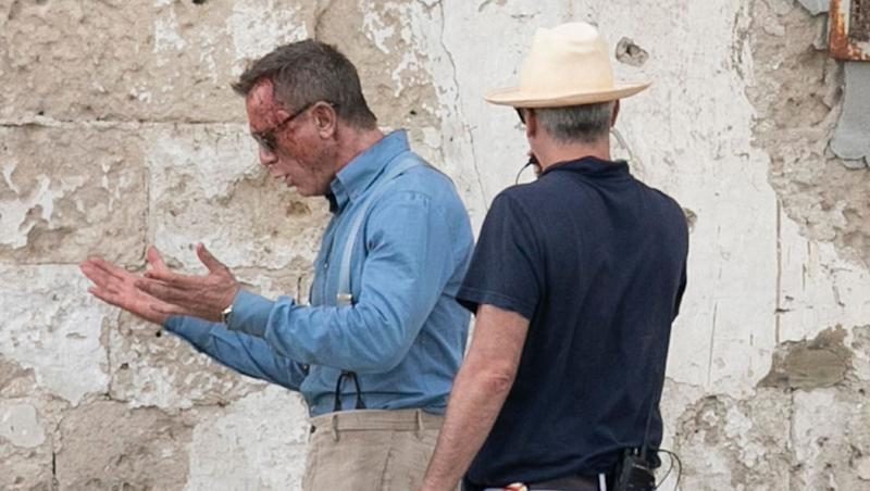 'Bond' actor Daniel Craig spotted in bloodied, bruised look