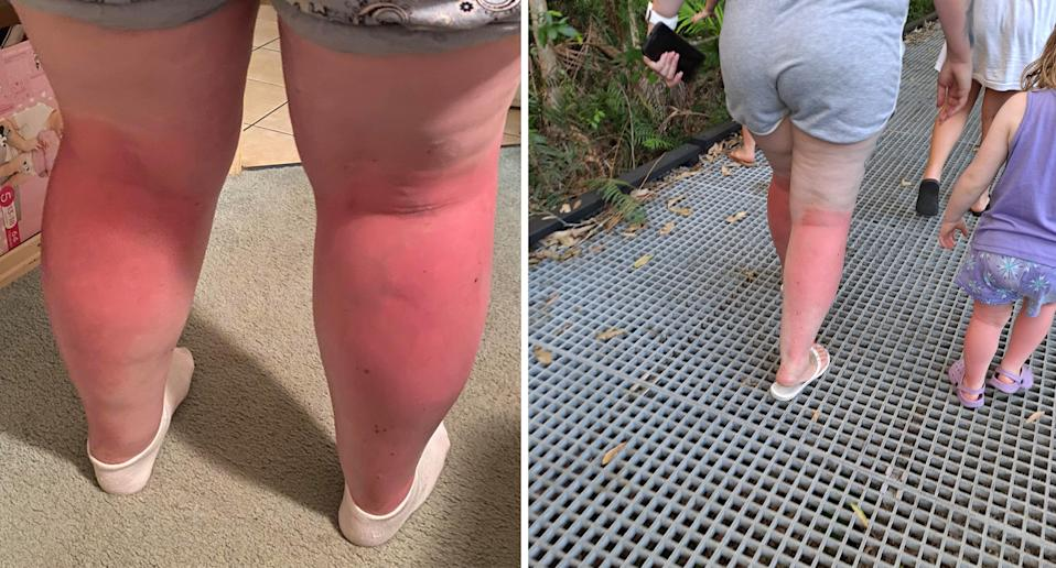The backs of the women's legs were left a bright red after the day at the beach. Source: Supplied
