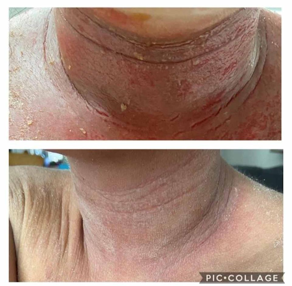 Her neck became sore and red. PA REAL LIFE COLLECT