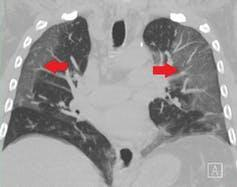 A CT scan of lungs