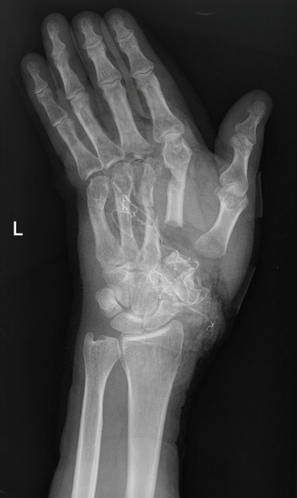 Anthony Lelliott cut through his palm, severing his thumb and first two fingers (SWNS)