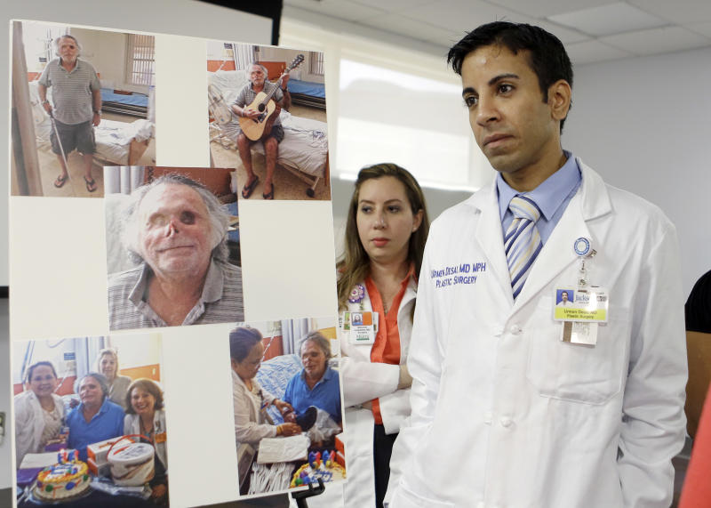 Dr. Urmen Desai, right and Dr. Wrood M. Kassira, both plastic surgeons, are shown during a news conference in Miami, Tuesday, May 21, 2013. The the photos on the left are of Ronald Poppo, a homeless man whose face was mostly chewed off in a bizarre attack last year in Miami. The attack left Poppo blind, but the doctors say he's been working with an occupational therapist to learn how to take care of himself. The doctors say Poppo also has learned to play guitar and practices daily. (AP Photo/Alan Diaz)