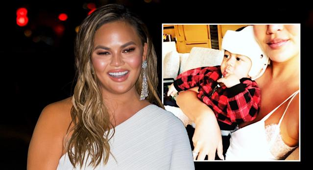 Chrissy Teigen took to social media to explain that her son Miles has to wear a corrective helmet for flat head syndrome [Photo: Getty/Twitter]