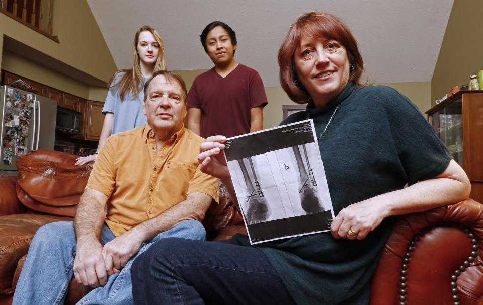 Leslie Kurtz, right, poses for a picture with her husband, Bart Bartram, daughter Rainey, and son Rio as she holds a print of an X-ray of her ankle, in Knoxville, Tenn. (AP Photo/Wade Payne)