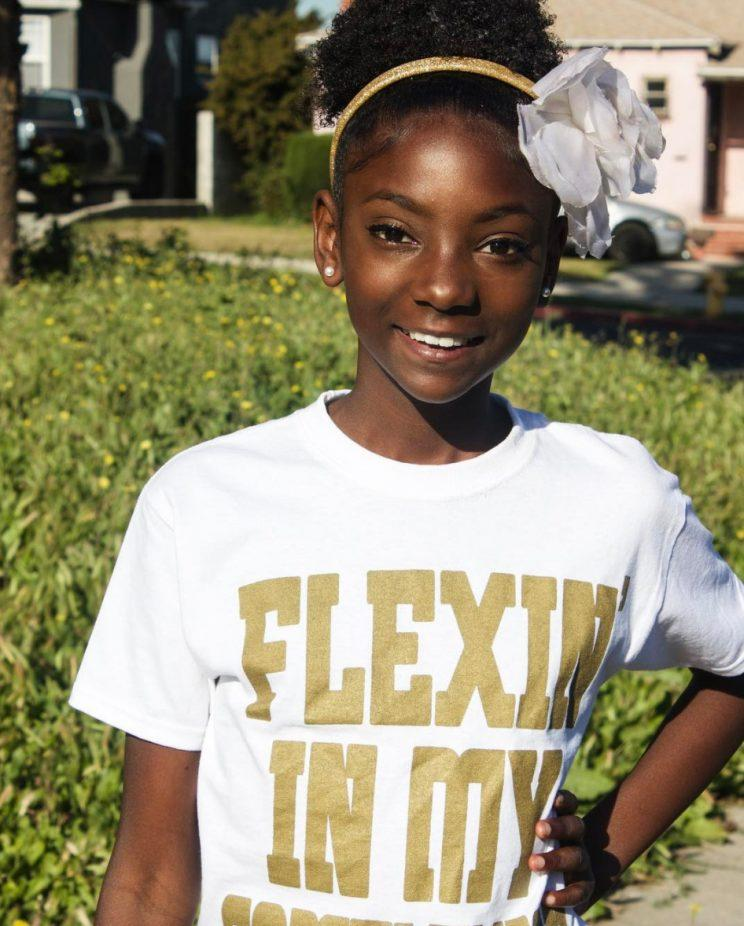 10-year-old bullied for her skin is launching a fashion line