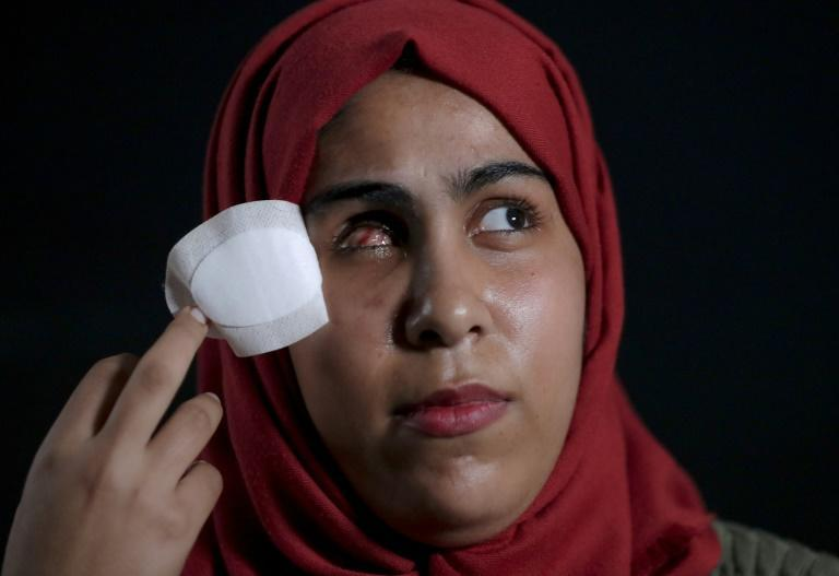 Mai Abu Rawda, who lost her right eye, poses for a photo in Gaza (AFP Photo/Emmanuel DUNAND)