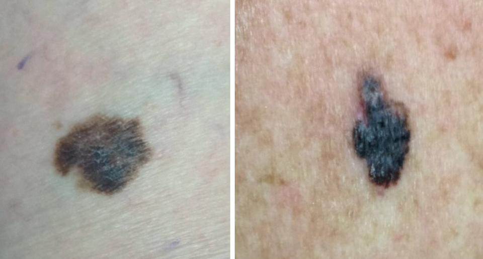 Examples of confirmed melanomas.ma (Photo: SkinVision)