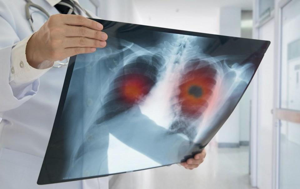 Doctor check up x-ray image have problem lung tumor of patient.