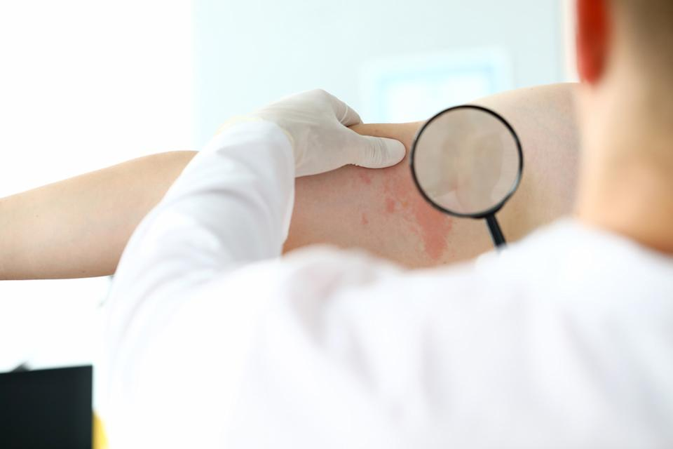 Dermatologist examines a red rash on a patient's skin