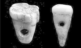 8,500-year-old pendant made from human teeth discovered