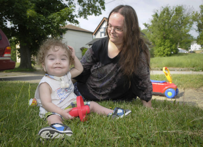 Kaiba Gionfriddo plays with his mother, April outside his Youngstown, Ohio home Tuesday, May 21, 2013. Born with a birth defect that caused the boy to stop breathing every day, he can now breathe normally, with a first-of-a-kind biodegradable airway made by Michigan doctors using plastic particles and a 3-D laser printer. (AP Photo/Mark Stahl)