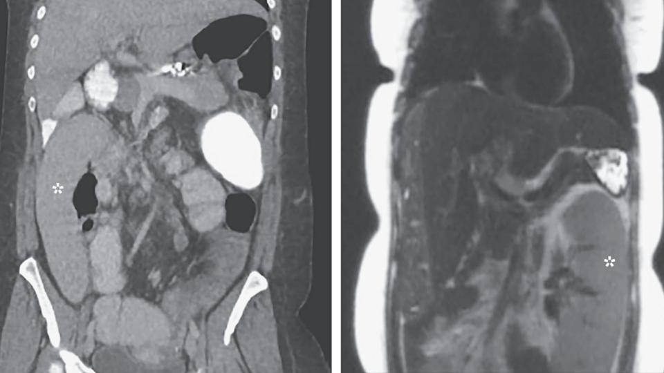 Left panel shows a medical scan of an abdomen where the spleen is in the wrong position. The right panel shows the correct position.