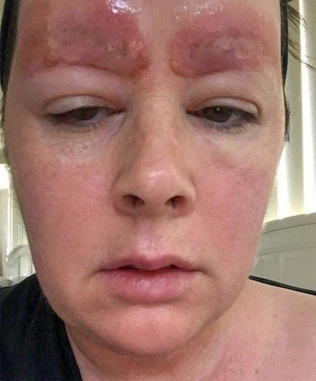 She said she woke up and her skin was peeling off. Photo: Caters News